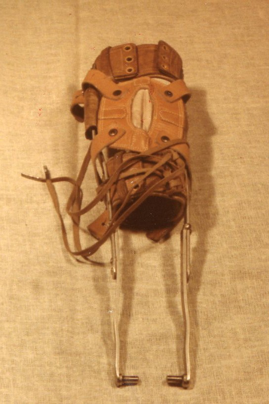 A two-year-old girl who contracted polio in the early 1940s received this leg brace to wear.